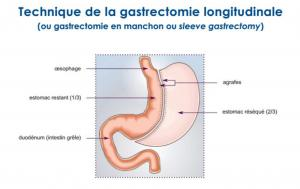 Technique de la gastrectomie longitudinale